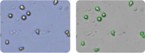LOX IMVI cells
