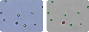 MALME-3M cells