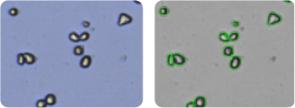 SK-MEL-5 cells