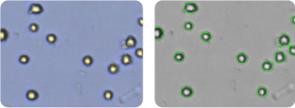 SNB-75 cells