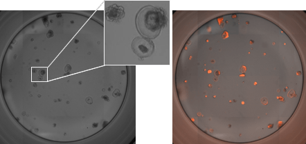 RFP-labeled mouse pancreatic organoids plated and imaged in a 96 well plate