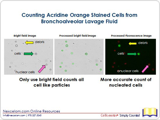 Counting Acridine Orange Stained Cells from Bronchoalveolar Lavage Fluid