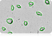 count irregular-shaped cells