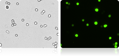 GFP Expression in 293T Cells