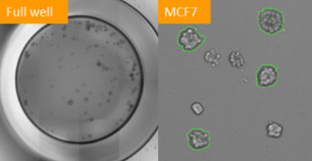 counted mcf-7 formed tumorspheres