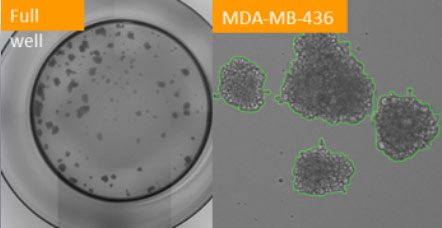 counted mda-mb-463 formed tumorspheres