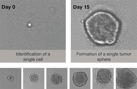 Tumor sphere formation