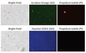 SVF-fluorescent-images