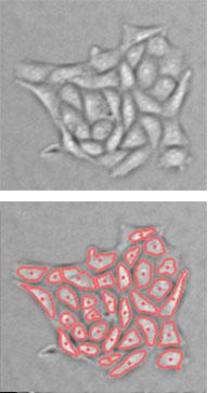 Celigo imaged adherent cells