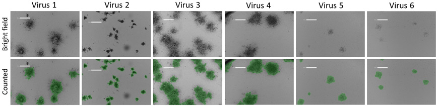Bright field and counted images of plaques formed from different viruses