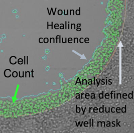 Wound healing confluence image