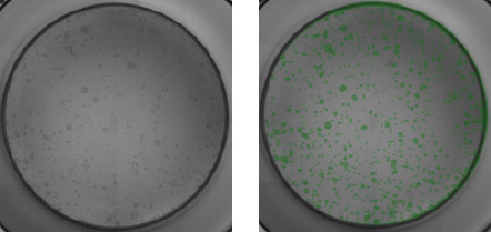 Mouse pancreatic organoids plated and imaged in a 96-well plate