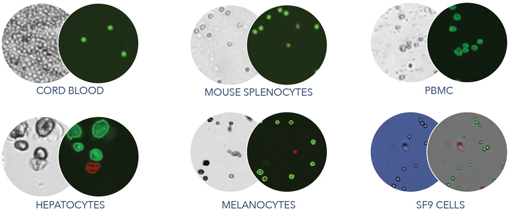 K2 cell image examples
