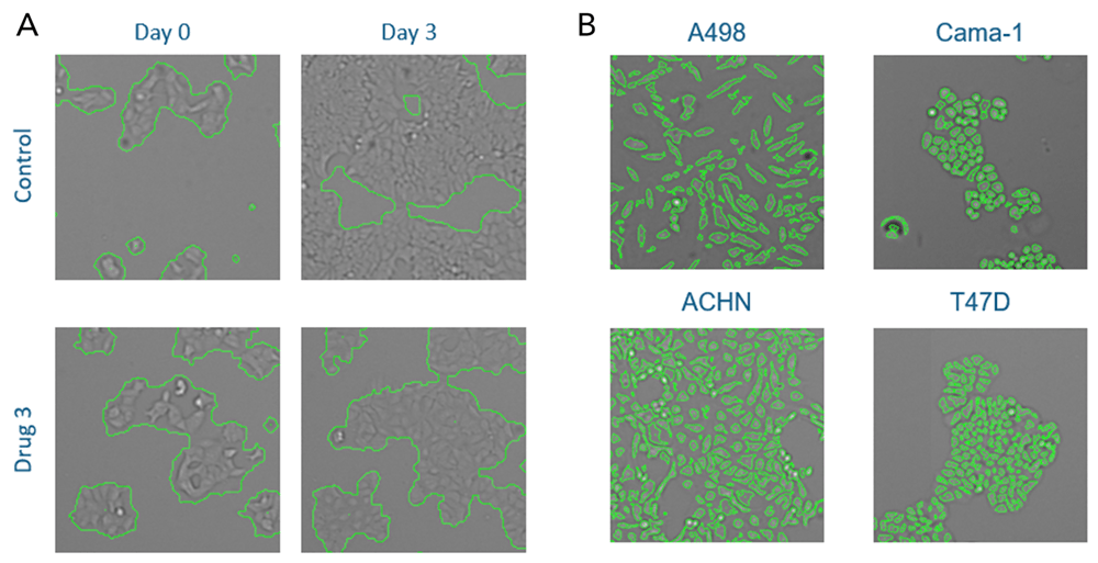Cell proliferation Confluence or Direct Cell Counting