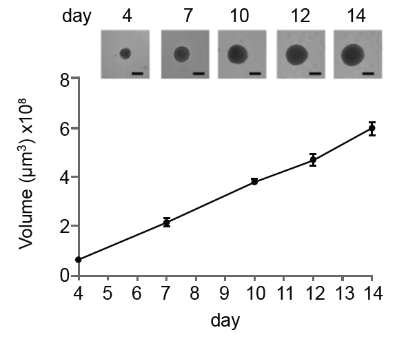 tumor spheroid growth curve